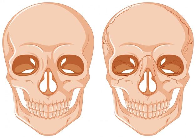 Twee schedels op een witte achtergrond