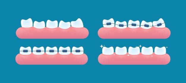 Uitlijning van tanden en bijtcorrectie met behulp van beugelsysteem
