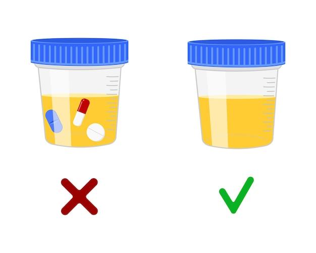 Urineonderzoek, urinemonsters met en zonder drugs. dopingcontrole in de sport, concept voor het testen van drugs na een ongeval. cartoon vectorillustratie.
