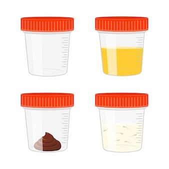 Urineontlasting en spermamonsters lege en volle plastic bekers urineonderzoek poep- en spermaanalyseset