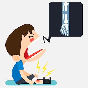 Vector illustratie, tiny schattige man karakter gebroken zijn rechterbeen door te vallen en toon been x-ray