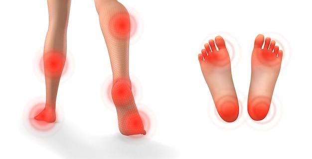Vector set benen met rode pijnplekken op een witte achtergrond