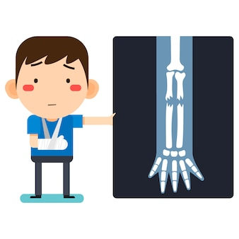 Vectorillustratie, kleine schattige cartoon patiënt man karakter gebroken rechterarm in gipsverband of gepleisterde arm