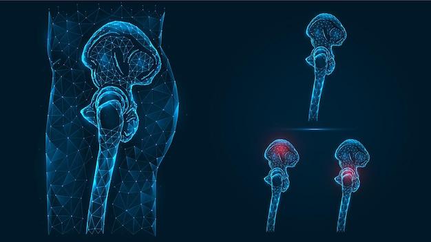 Veelhoekige illustratie van het zijaanzicht van het menselijke bekken en heupbeenderen. ziekte, pijn en ontsteking van het bekken en heupgewricht.