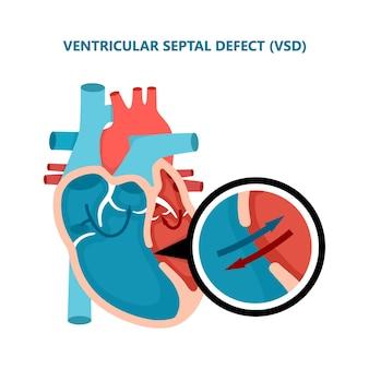 Ventriculair septumdefect vsd dwarsdoorsnede van menselijke hartspierziekten