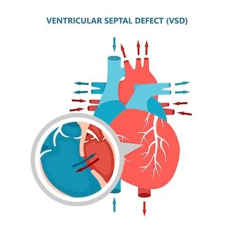 Ventriculair septumdefect vsd met hartbloedstroom dwarsdoorsnede van menselijke hartspierziekten