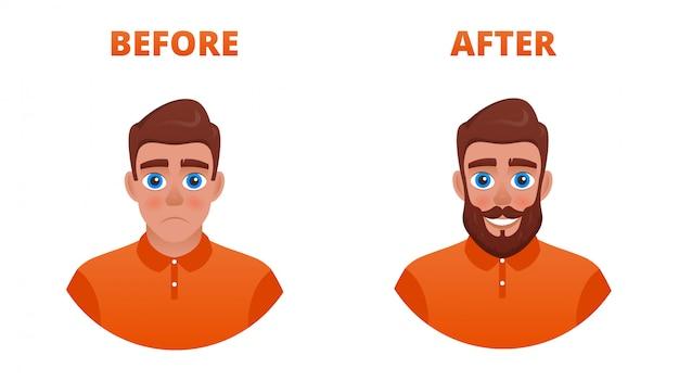 Verdrietige man met een niet-groeiende baard. het resultaat van het gebruik van minoxidil of haartransplantatie.