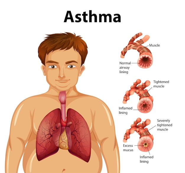 Vergelijking van gezonde long en astmatische long