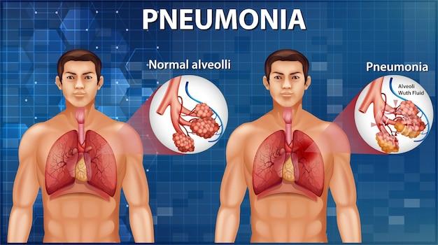 Vergelijking van gezonde longblaasjes en longontsteking