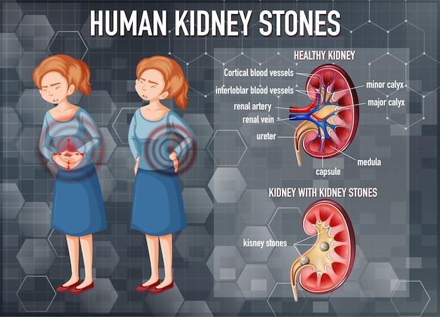 Vergelijking van gezonde nier en nier met stenen