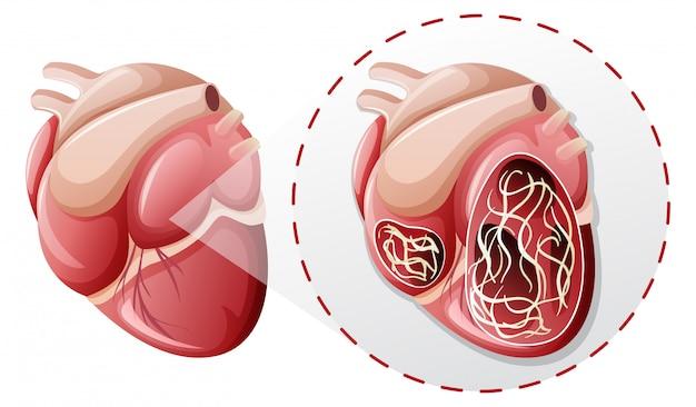 Vergroot hart worm concept