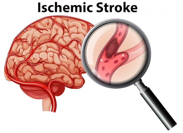 Verhoogd ischemic stroke-concept