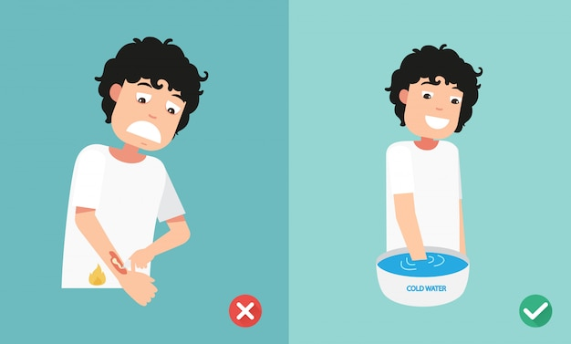 Verkeerde en juiste manieren eerste hulp noodbehandeling huid branden, illustratie
