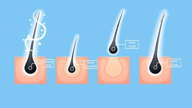 Verschillende haarproblemen en illustraties voor diepe salonbehandeling.