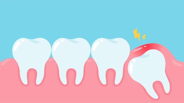 Verstandskiezen onder het tandvlees veroorzaken pijn in de mond. tandheelkundige zorg concept