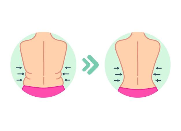 Vet op de rug vetplooien aan de zijkanten van vrouwen voor en na een dieet, fitness of liposuctie