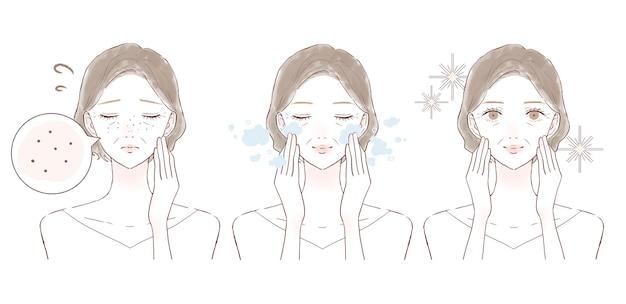Voor en na van vrouwen van middelbare leeftijd die lijden aan donkere poriën. op witte achtergrond.