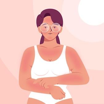 Vrouw met zonnebrand over haar hele lichaam