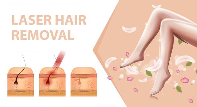Vrouwelijke haarloze gladde benen, haarverwijderingsbanner