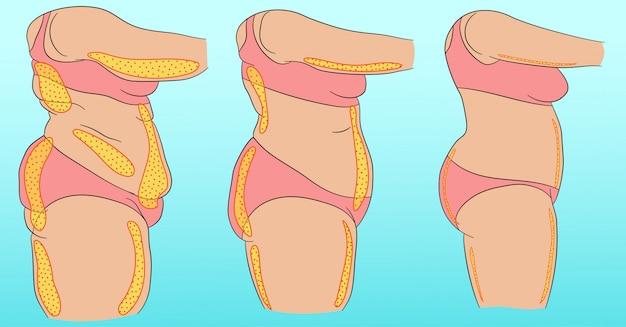 Vrouwenlichaam met aanduiding van cellulitis of vet