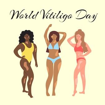 Wereld vitiligo dag vrouwen in zwemkleding van verschillende nationaliteiten en lichaamsbouw met vitiligo