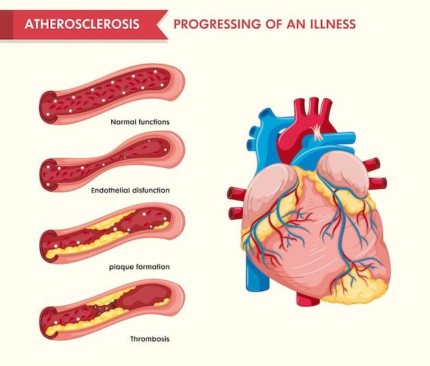 Wetenschappelijke medische illustratie van atherosclerose
