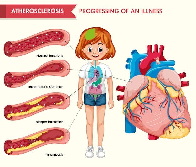 Wetenschappelijke medische infographic van atherosclerose