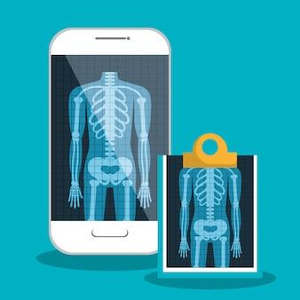 X ray digitale medische gezondheidszorg geïsoleerd