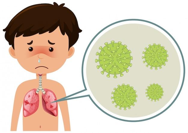 Zieke jongen met coronavirus verspreidt zich in zijn lichaam