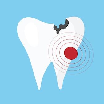 Zieke tandillustratie tand met cariës en pijn ongezond tandconcept