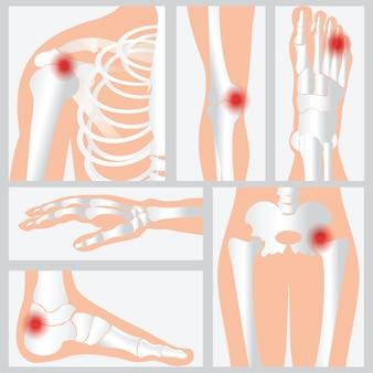 Ziekte van de gewrichten en botten