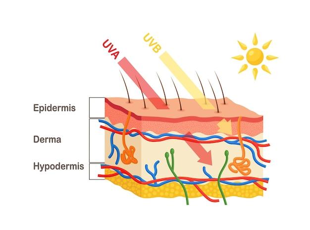 Zonnestralen dringen door in de epidermis en dermis van de huid. anatomie van de menselijke huid. verschil tussen penetratie van uva- en uvb-stralen. medisch diagram van huidlagen